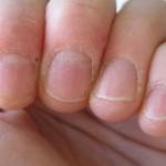 爪の甘皮の処理方法とは?やり方を知って簡単に処理しよう!