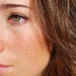 マラセチア毛包炎の治療方法とは?市販薬でも治せるの?