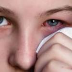 目の充血の原因は?病気やアレルギーに要注意!