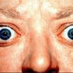 バセドウ病の初期症状とは?チェックする方法を紹介!