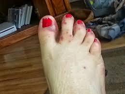 斑点 足 かゆい 赤い