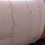 doppler-ultrasound-381363__180
