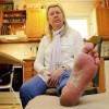 掌蹠膿疱症の原因はストレス?治療方法も紹介!