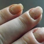 爪が痛いのは病気?ズキズキと痛む原因や対策について!