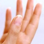 爪の白い部分について!ないのはマズい?増えるのは病気なの?