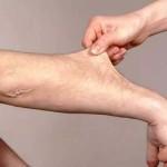 血管が浮き出る原因とは?病気の可能性や対処法について!