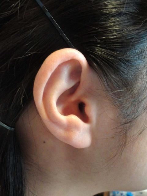 耳 の 下 しこり 痛く ない