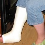 足首の骨折の症状とは?歩けるまでに手術やリハビリが必要?