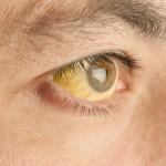 白目が黄色になる4つの原因とは?対処法や病気の可能性について!