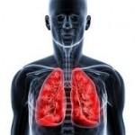 肺に影がある時は病気なの?レントゲンで分かる事って?
