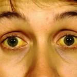 尿の色が濃いのは疲れ?原因や病気の可能性について!