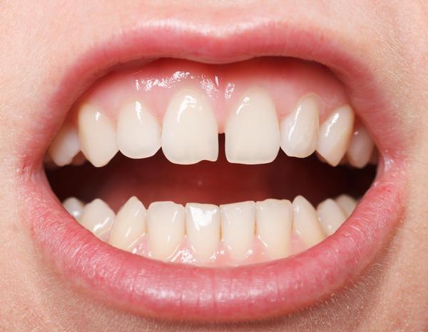 歯茎 白い