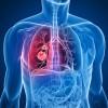 肺炎の死亡率が高いのはなぜ?種類や症状を把握しておこう!