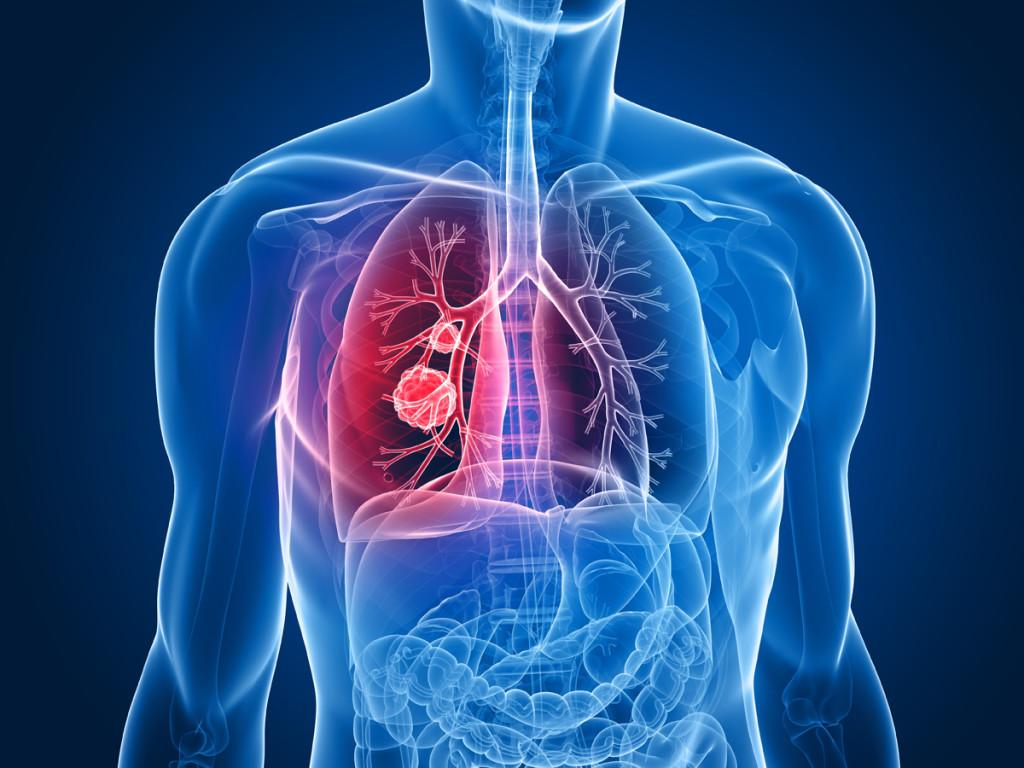 肺炎 死亡率