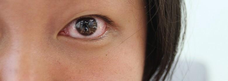片目 充血