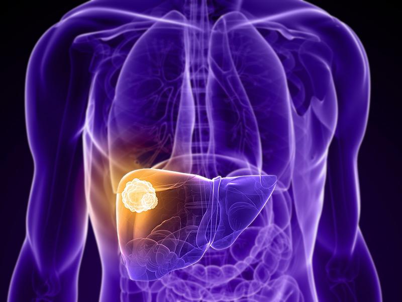 肝臓がん 末期
