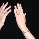 小指のしびれの原因とは?症状や考えられる病気を知っておこう!