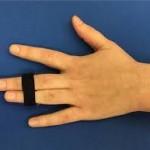 突き指が治らない!治療方法や症状、種類を紹介!