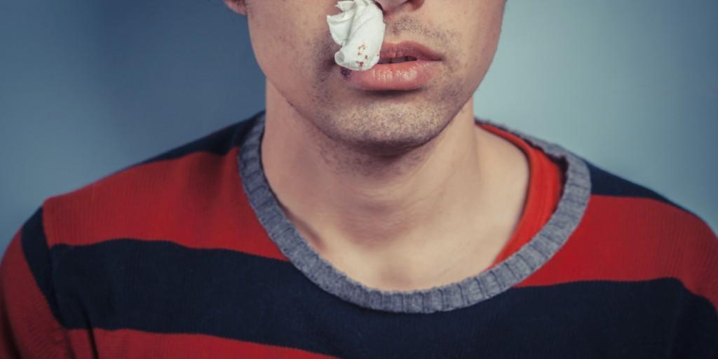 鼻血がよく出る男