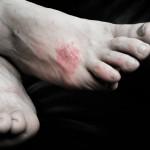 足の甲がかゆいのは病気?原因や症状、治療法を紹介!