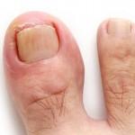 巻き爪の治し方とは?自分で治療する方法と病院での治療法を紹介!