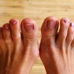 足の指が痛い原因は?可能性のある病気と炎症を紹介!