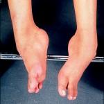 筋ジストロフィーの初期症状とは?遺伝の確率についても紹介!