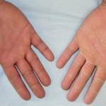 水虫が手に発症した時の症状って?予防する方法を知っておこう!