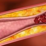 血管の硬化を改善する方法は?原因や症状についても紹介!