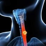 食道がんの症状とは?初期と末期の違いについて知っておこう!