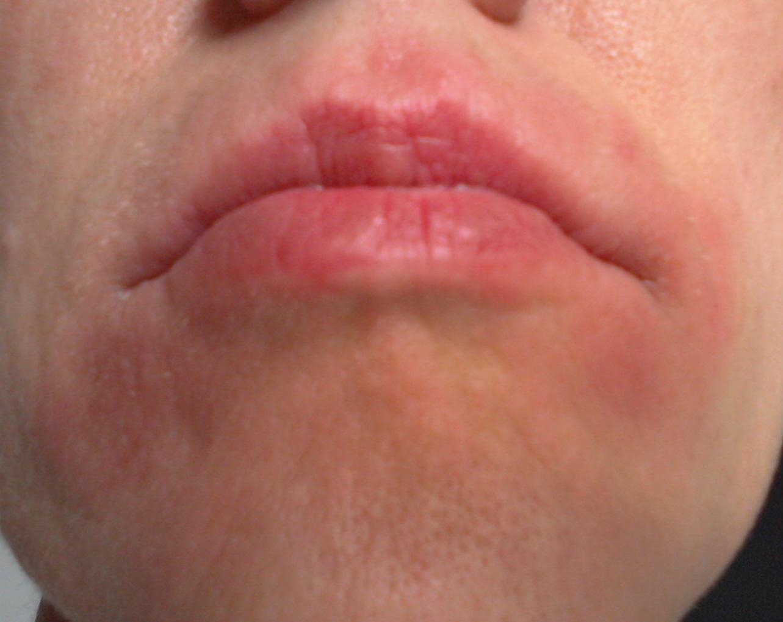 口の周り 湿疹