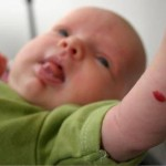苺状血管腫とは?原因や症状、治療方法を紹介!