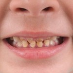 虫歯を放置してはいけない10個の理由と5つの状態について!