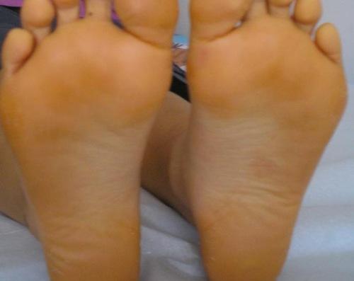 足の裏 黄色い