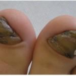 爪のカビって?グリーンネイルの症状と原因、治療方法を紹介!