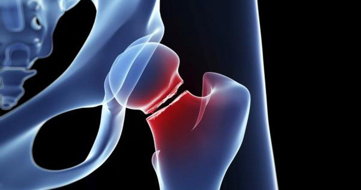 大腿骨骨折