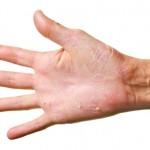 手のひらがぶつぶつになる病気って?症状や対策方法を紹介!