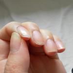 爪が剥がれた!処置や原因、病気の可能性を紹介!