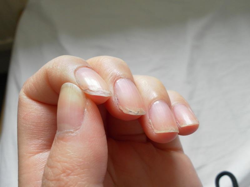 爪が剥がれた