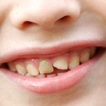 歯が欠けた時の応急処置!治療法と放置の危険性を紹介!