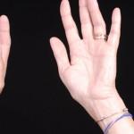 手のひらしびれの原因って?考えられる病気と対策法を紹介!