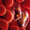 マラリアとは?症状や原因、治療方法を詳しく紹介!