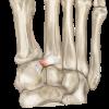 リスフラン関節が痛い!捻挫や骨折が起きた時の治療法は?