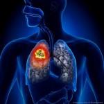 肺腺癌とは?症状や原因、肺がんとの違いなどを紹介!
