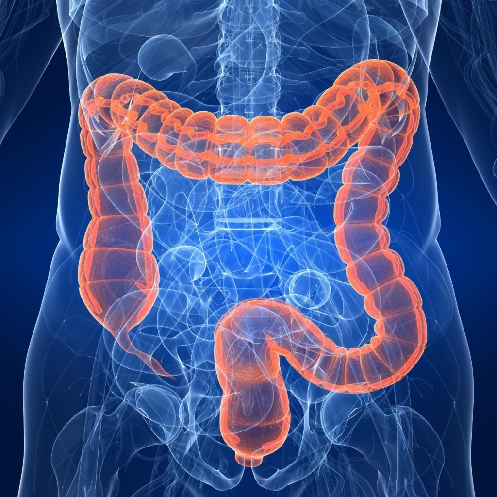 直腸がん 症状