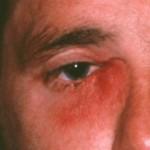 涙嚢炎は涙が止まらなくなる?その症状や種類、原因について知ろう!