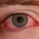 角膜炎とは?症状・原因・治療法・予防法を紹介!