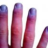 チアノーゼとは?種類や症状、原因や治療方法を知ろう!