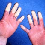 レイノー症候群とは?皮膚の色が変わる症状や原因、治療方法って?
