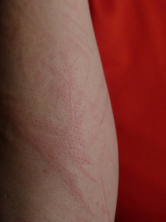 arm-141290_960_720f発疹